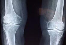 Photo of Frattura ortopedica: che cos'è e in che modo può essere curata