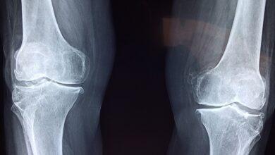 Frattura ortopedica